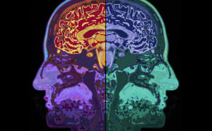 Flow Between Both Sides of Brain